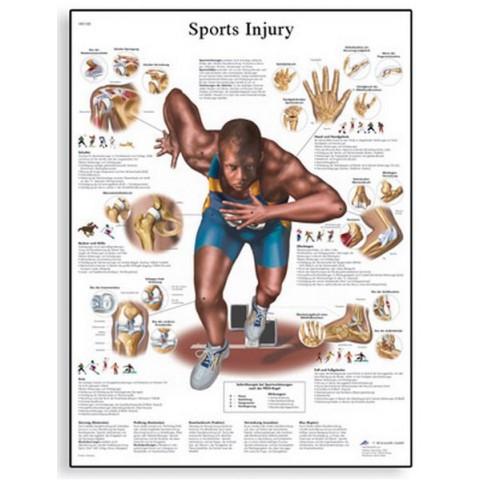Διάγραμμα αθλητικών κακώσεων 3B Scientific