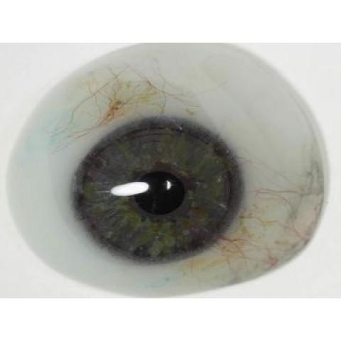 Τεχνητός Οφθαλμός