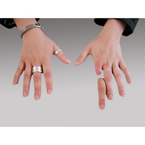 Πρόθεση δακτύλων χεριού εξατομικευμένης κατασκευής
