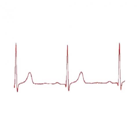 Ηλεκτροκαρδιογράφημα χωρίς διάγνωση
